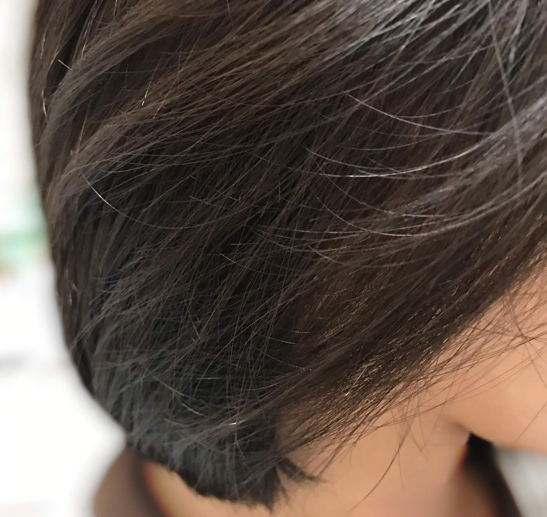 夏の抜け毛の対策!簡単だけどしっかりケアできる